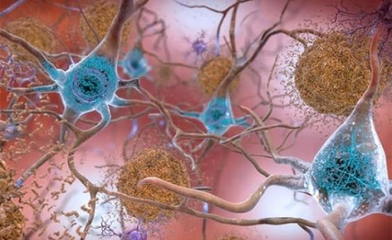 Megtalálták az Alzheimer-kór egyik fő okozóját